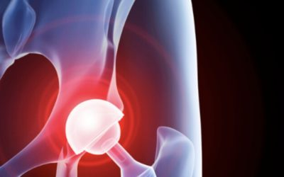 5 things to help you get the most out of your hip replacement