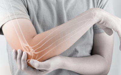 Give Elbow Pain The Elbow!